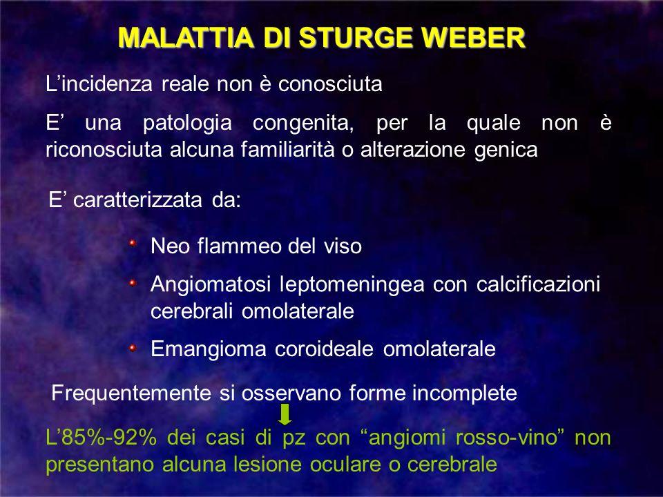 MALATTIA DI STURGE WEBER