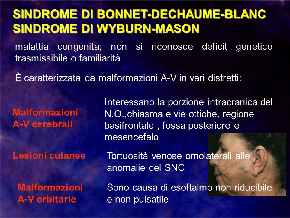 SINDROME DI BONNET-DECHAUME-BLANC SINDROME DI WYBURN-MASON