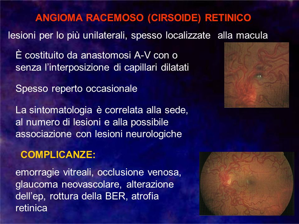 ANGIOMA RACEMOSO (CIRSOIDE) RETINICO