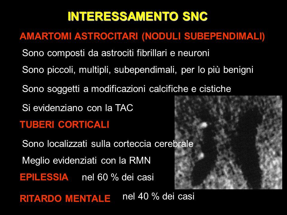 INTERESSAMENTO SNC AMARTOMI ASTROCITARI (NODULI SUBEPENDIMALI)
