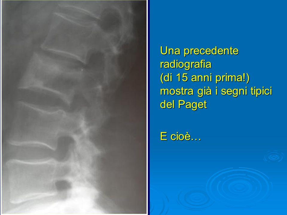 Una precedente radiografia (di 15 anni prima
