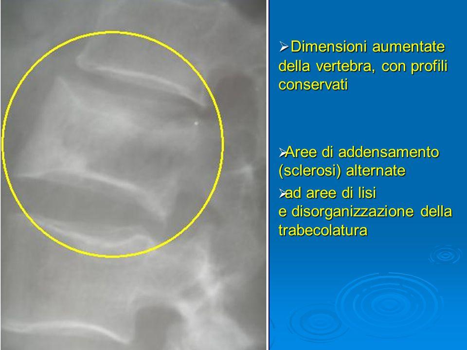 Dimensioni aumentate della vertebra, con profili conservati