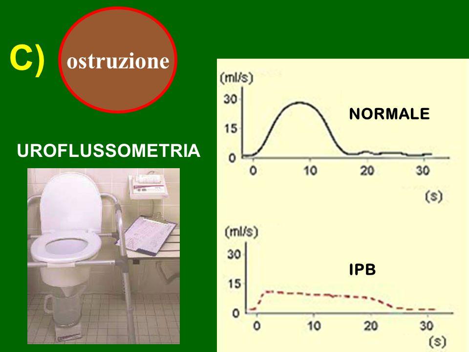 C) ostruzione UROFLUSSOMETRIA NORMALE IPB