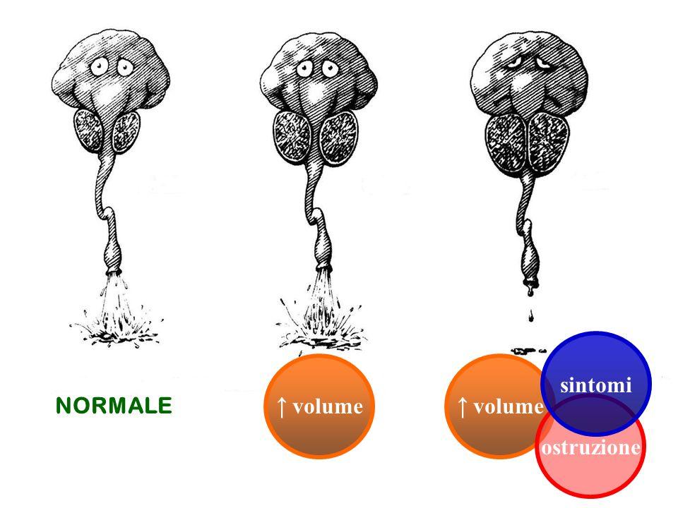 NORMALE sintomi ↑ volume ↑ volume ostruzione