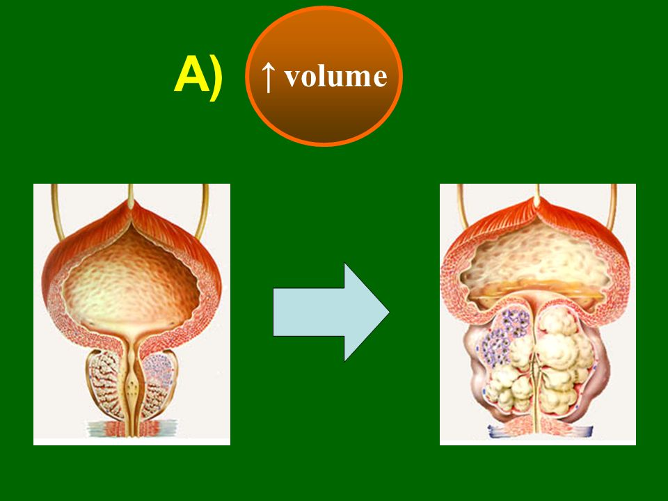 ↑ volume A)