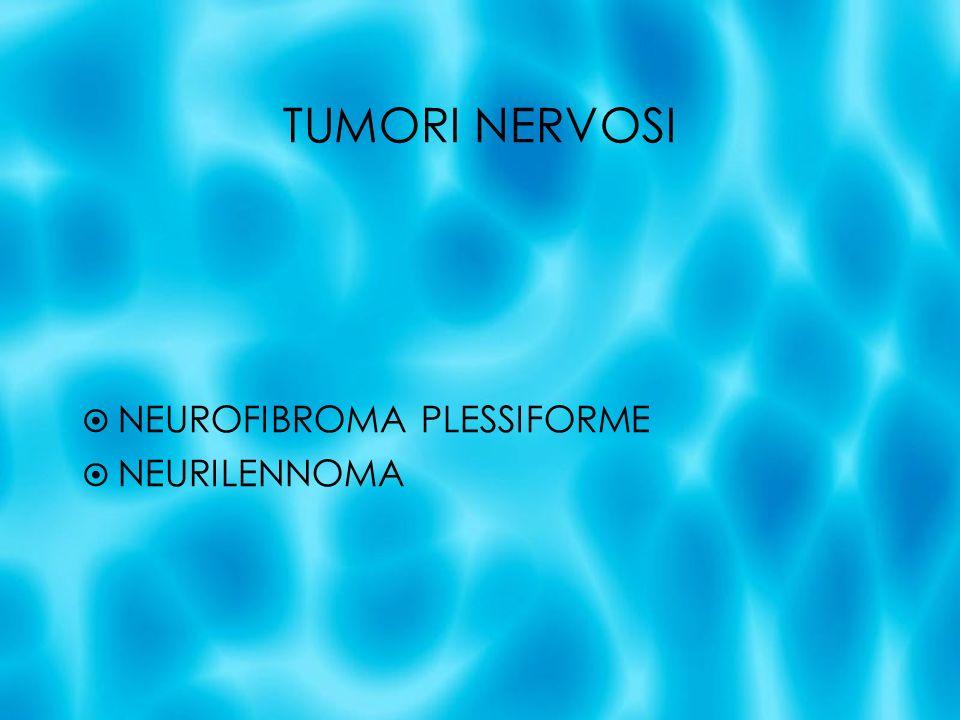 TUMORI NERVOSI NEUROFIBROMA PLESSIFORME NEURILENNOMA