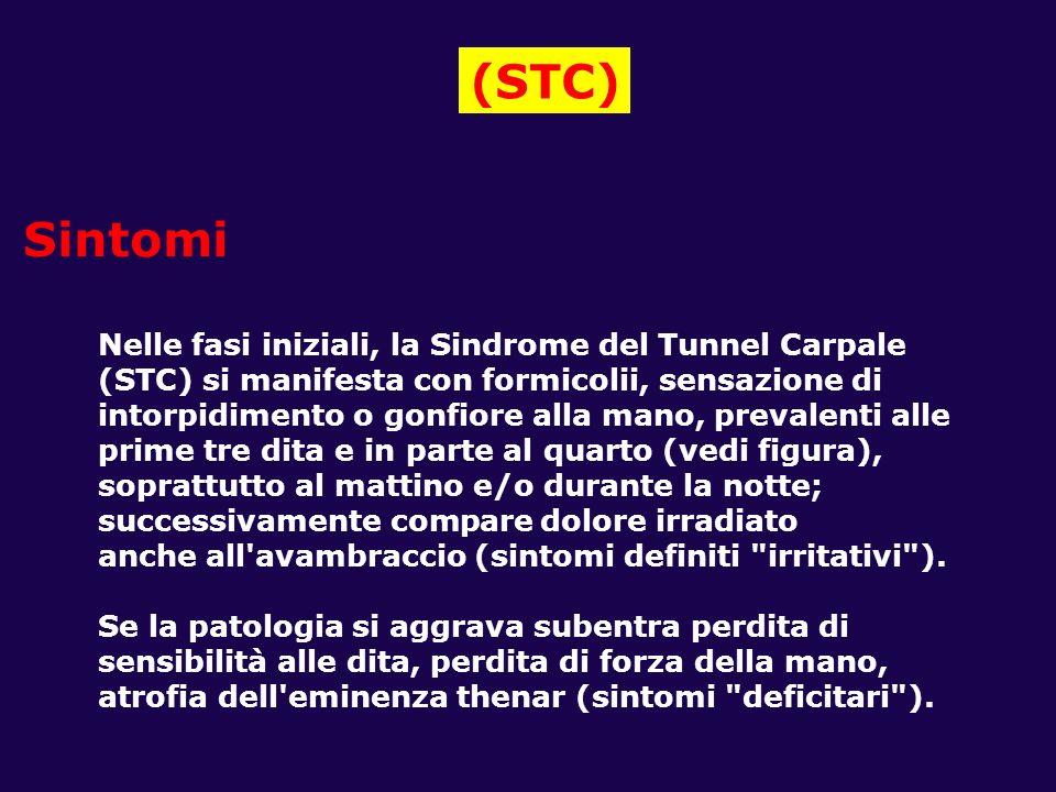 (STC) Sintomi Nelle fasi iniziali, la Sindrome del Tunnel Carpale
