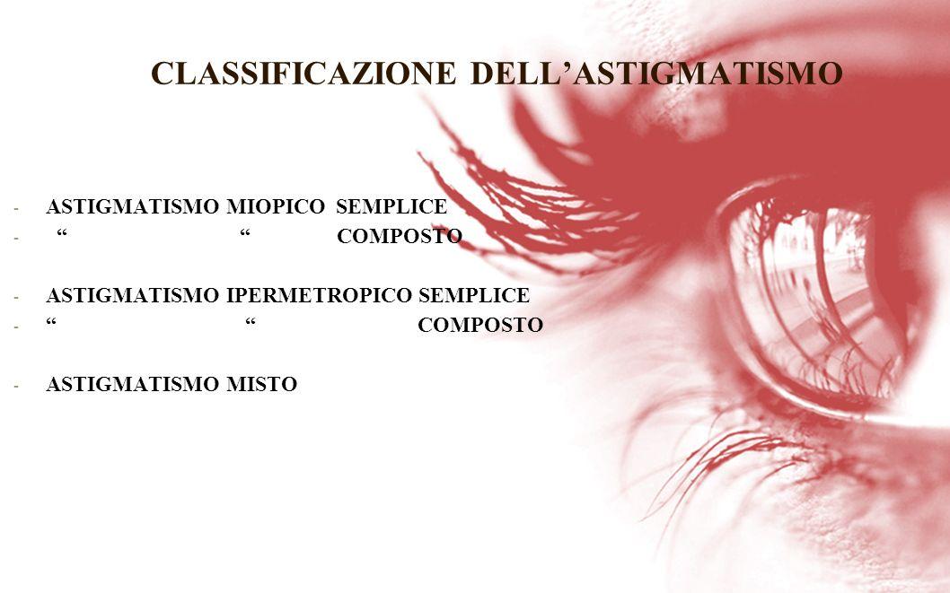 CLASSIFICAZIONE DELL'ASTIGMATISMO