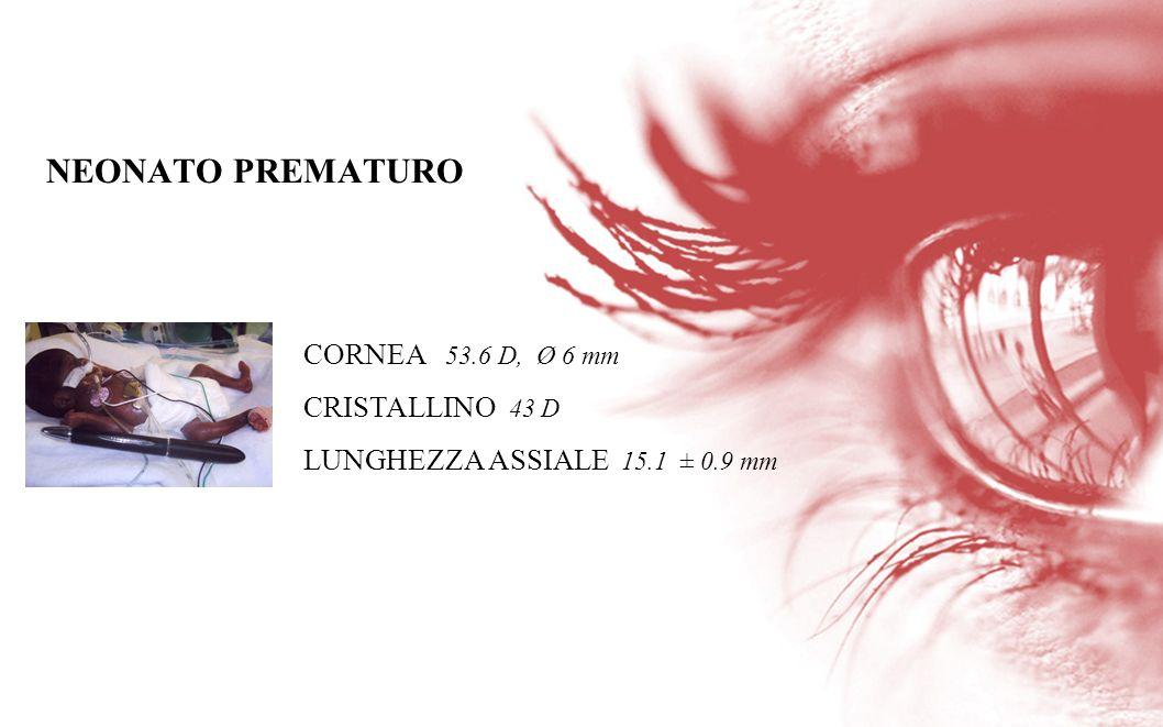 NEONATO PREMATURO CORNEA 53.6 D, Ø 6 mm CRISTALLINO 43 D
