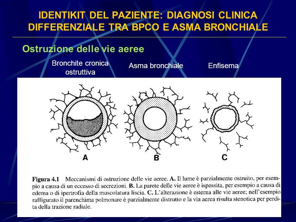 Bronchite cronica ostruttiva