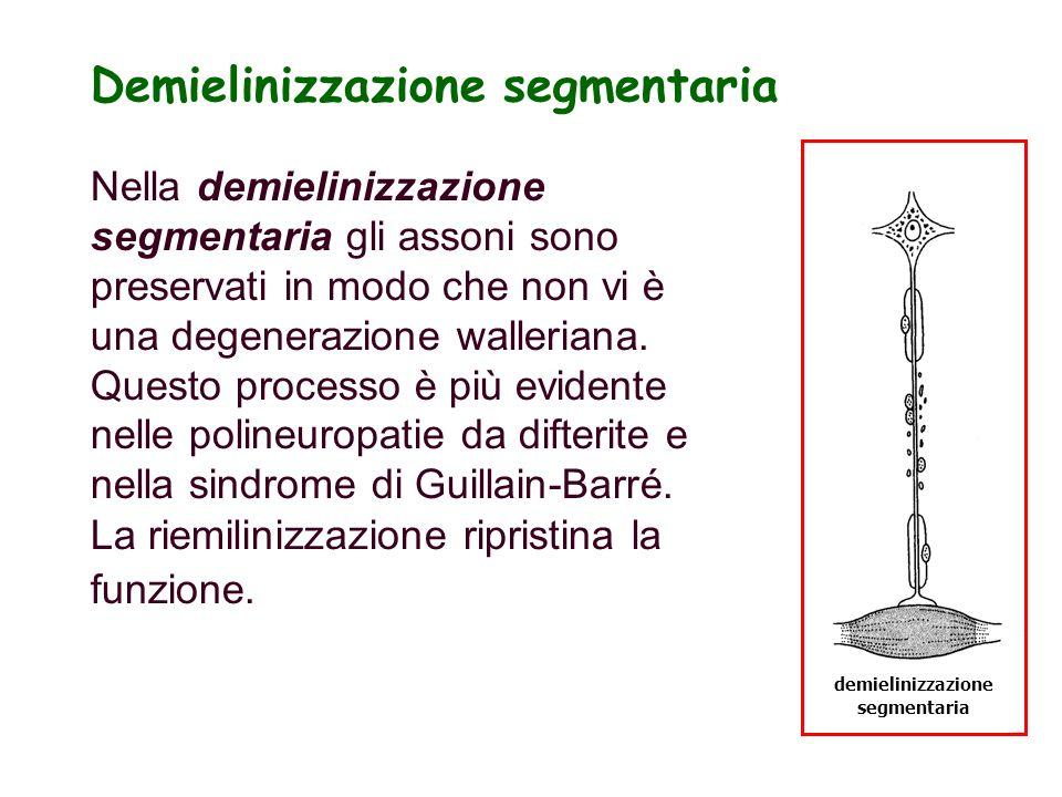 Demielinizzazione segmentaria