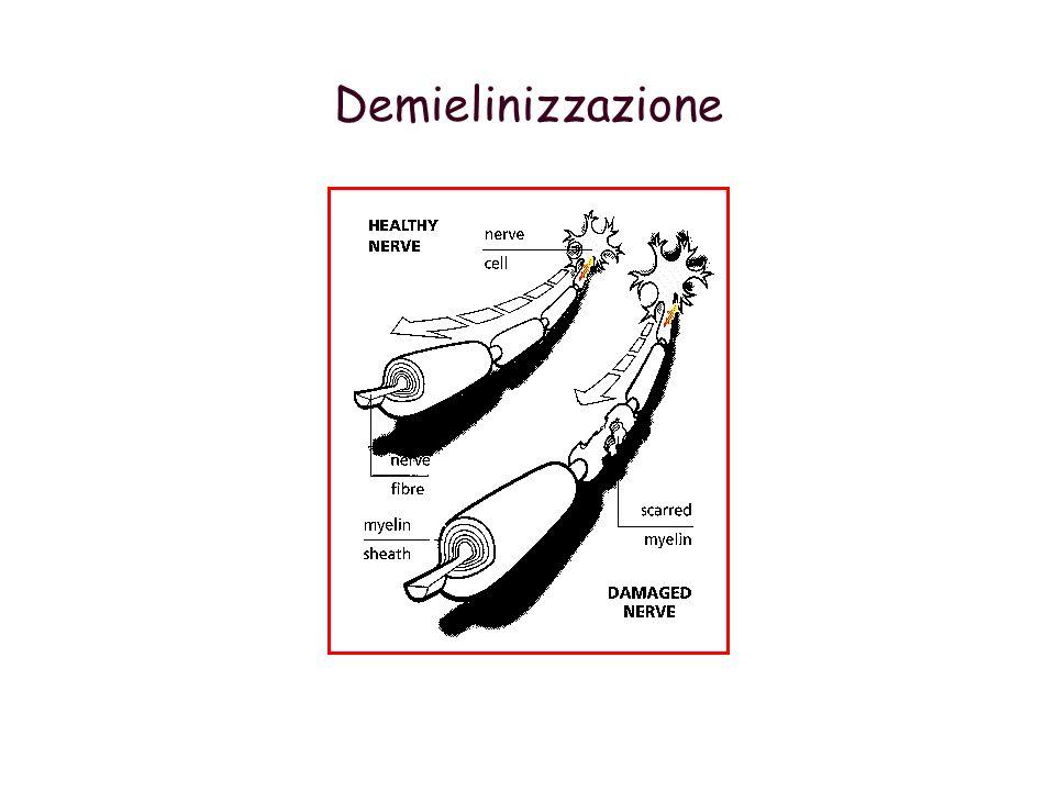 Demielinizzazione