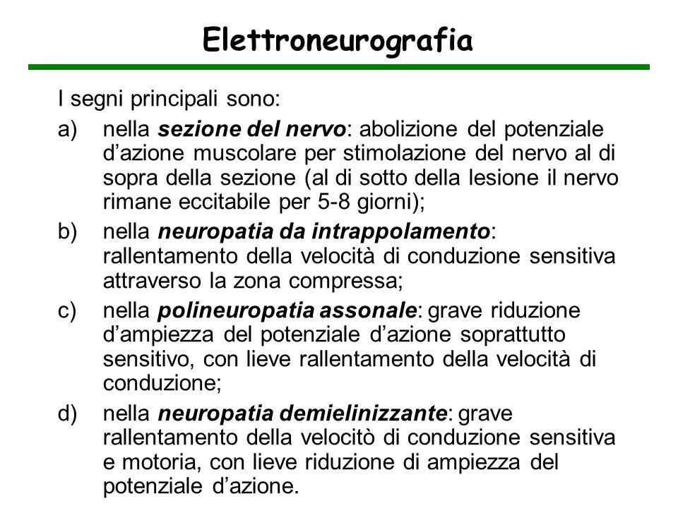 Elettroneurografia I segni principali sono: