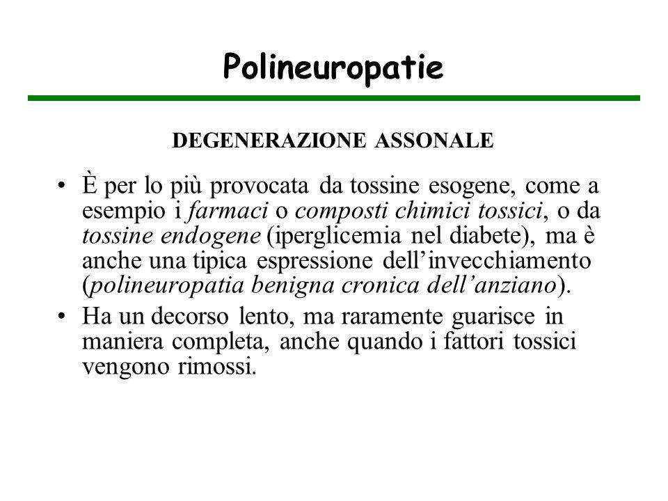 Polineuropatie DEGENERAZIONE ASSONALE.