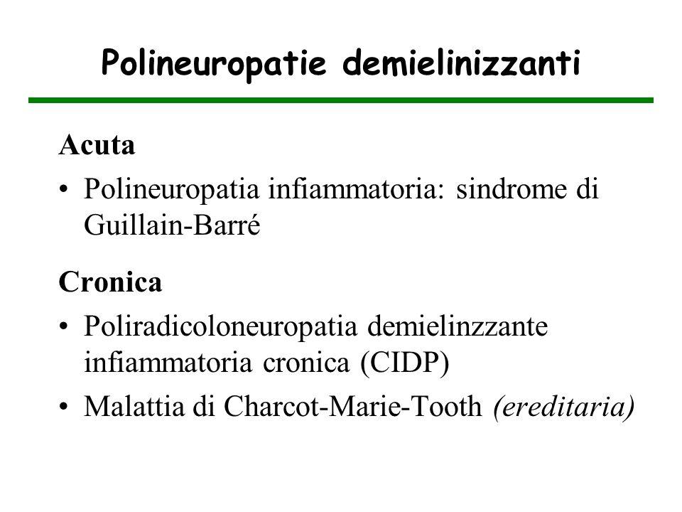 Polineuropatie demielinizzanti