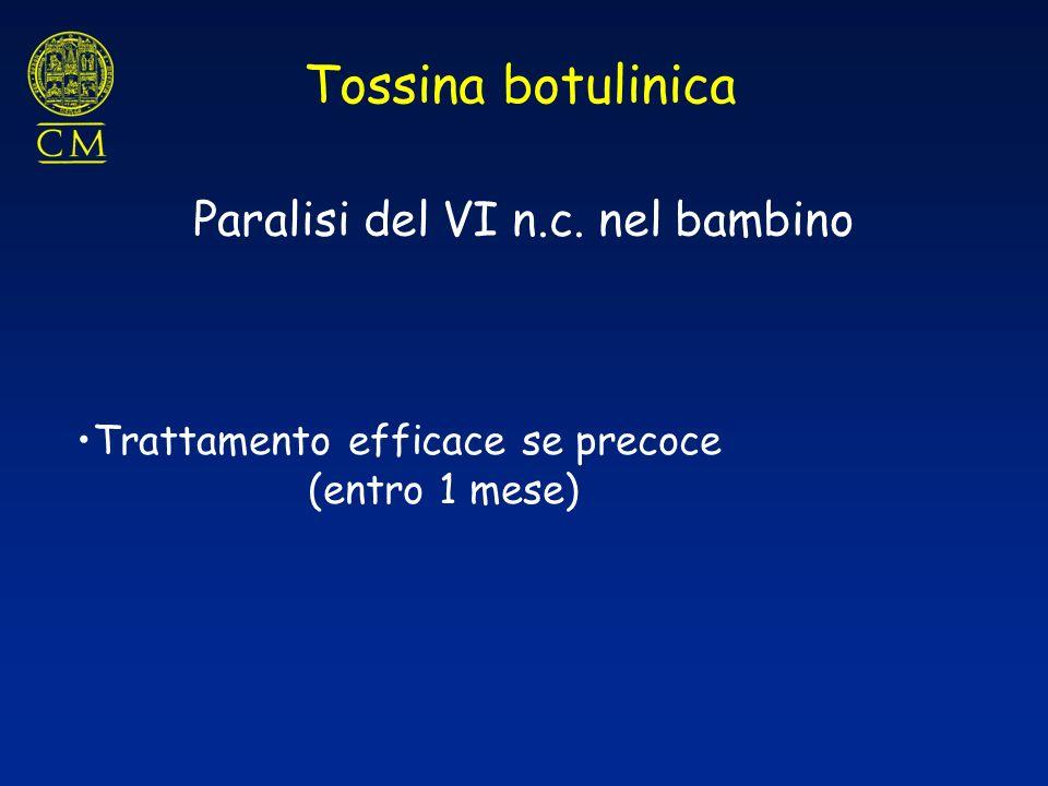 Tossina botulinica Paralisi del VI n.c. nel bambino