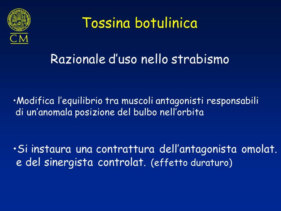 Tossina botulinica Razionale d'uso nello strabismo
