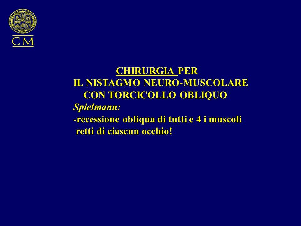 CHIRURGIA PER IL NISTAGMO NEURO-MUSCOLARE. CON TORCICOLLO OBLIQUO. Spielmann: recessione obliqua di tutti e 4 i muscoli.
