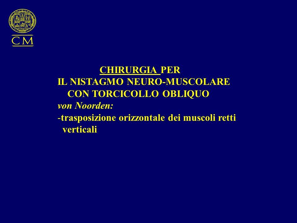 CHIRURGIA PER IL NISTAGMO NEURO-MUSCOLARE. CON TORCICOLLO OBLIQUO. von Noorden: trasposizione orizzontale dei muscoli retti.