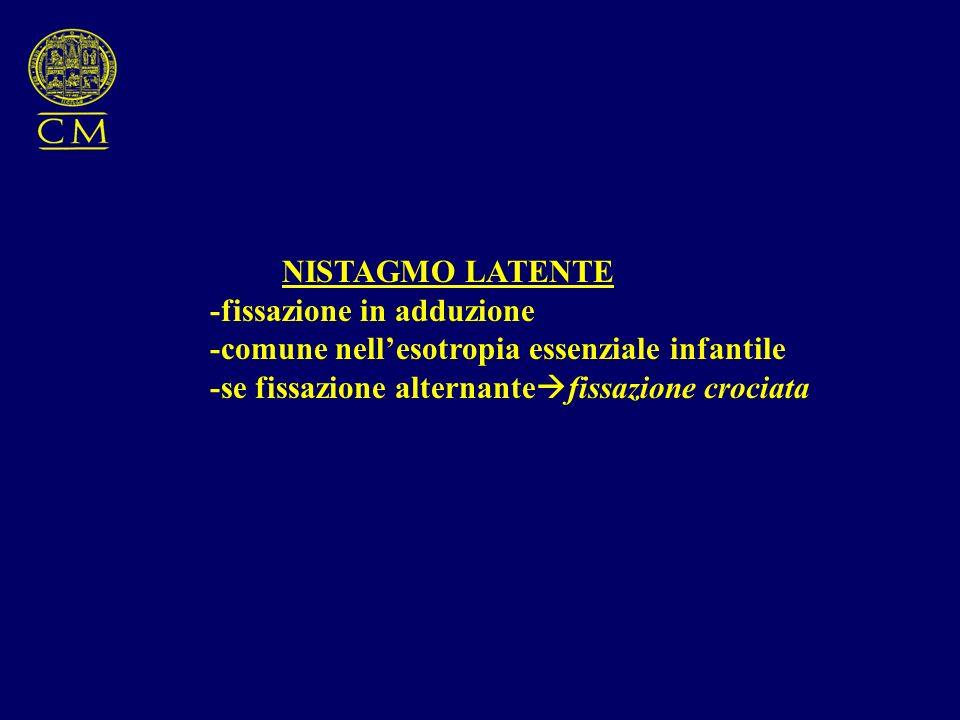 NISTAGMO LATENTE -fissazione in adduzione. -comune nell'esotropia essenziale infantile.
