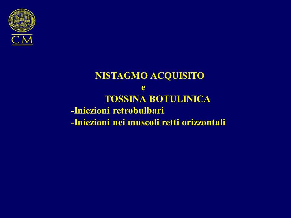 NISTAGMO ACQUISITO e. TOSSINA BOTULINICA. Iniezioni retrobulbari.