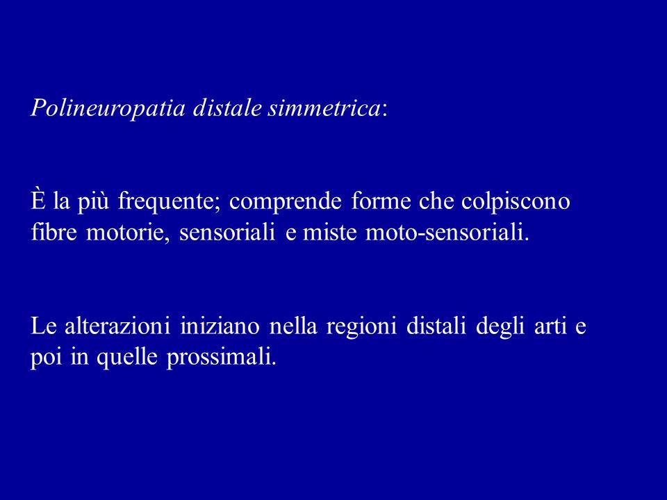 Polineuropatia distale simmetrica: