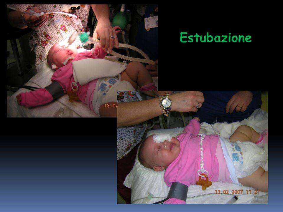 Estubazione