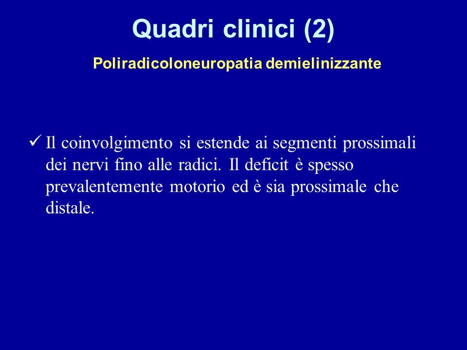 Quadri clinici (2) Poliradicoloneuropatia demielinizzante