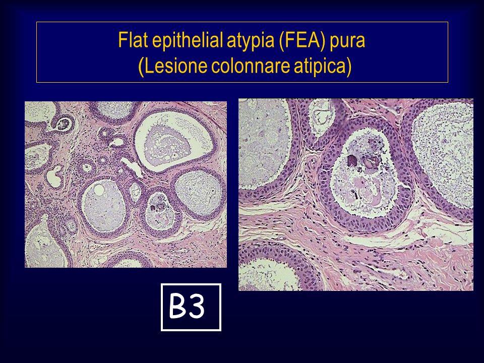 Flat epithelial atypia (FEA) pura (Lesione colonnare atipica)