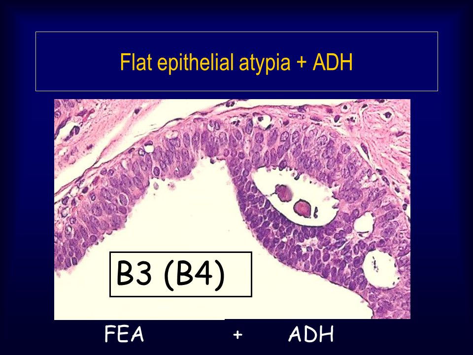 Flat epithelial atypia + ADH