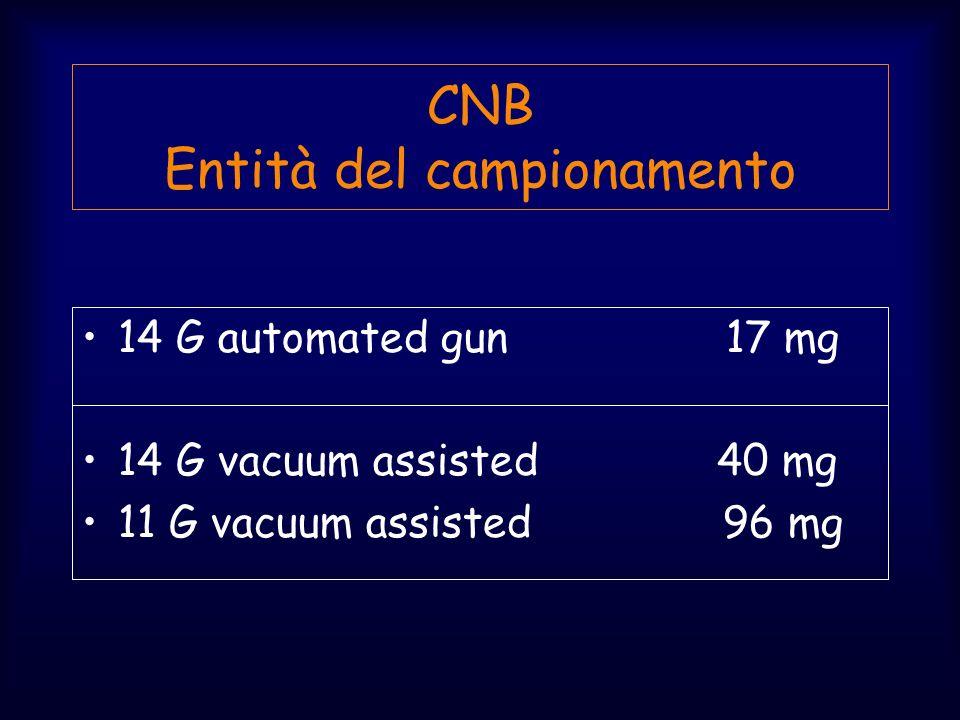 CNB Entità del campionamento