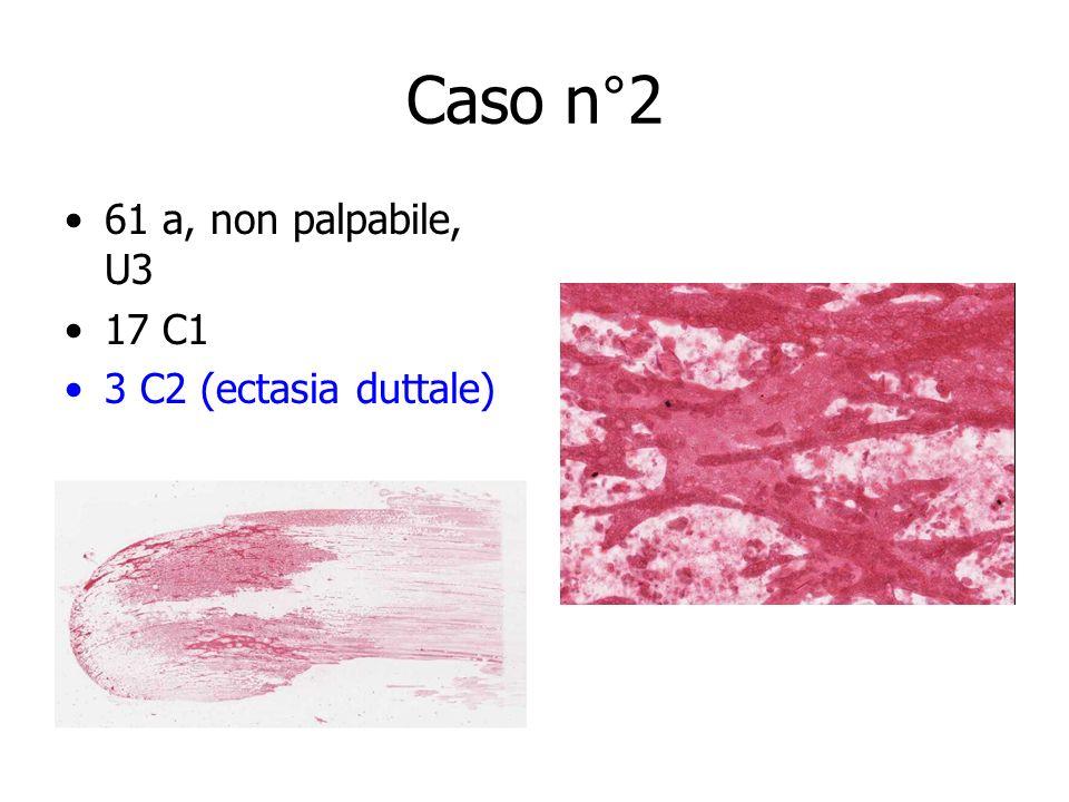 Caso n°2 61 a, non palpabile, U3 17 C1 3 C2 (ectasia duttale)