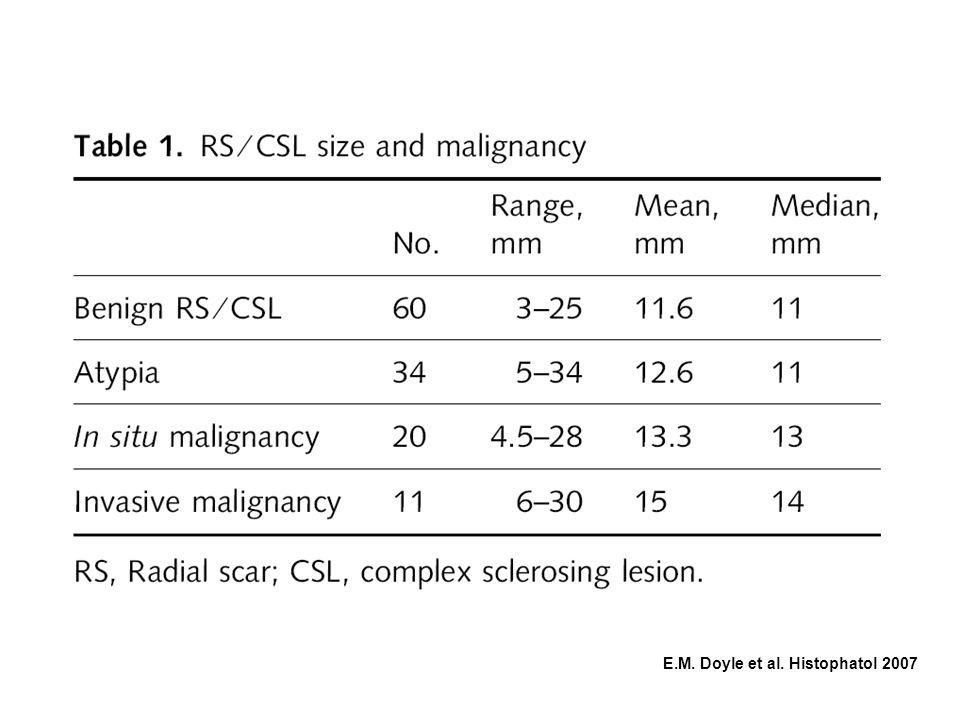 125 casi di Radial scar/ lesione complessa sclerosante non sembra essere correlata alle dimensioni