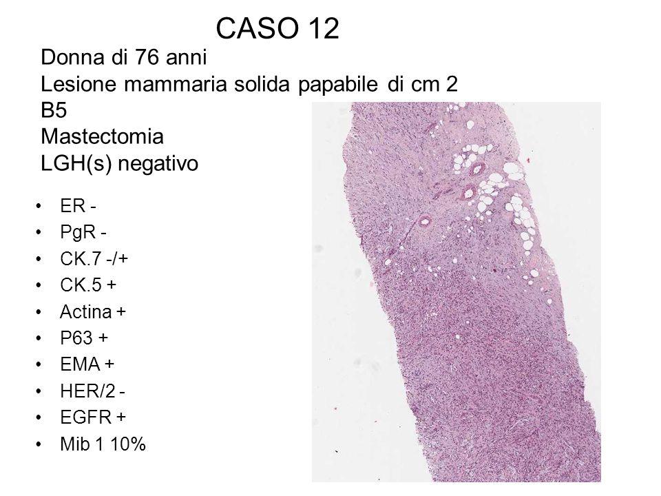 CASO 12 Donna di 76 anni Lesione mammaria solida papabile di cm 2 B5