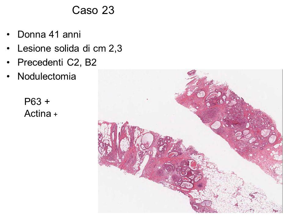 Caso 23 Donna 41 anni Lesione solida di cm 2,3 Precedenti C2, B2