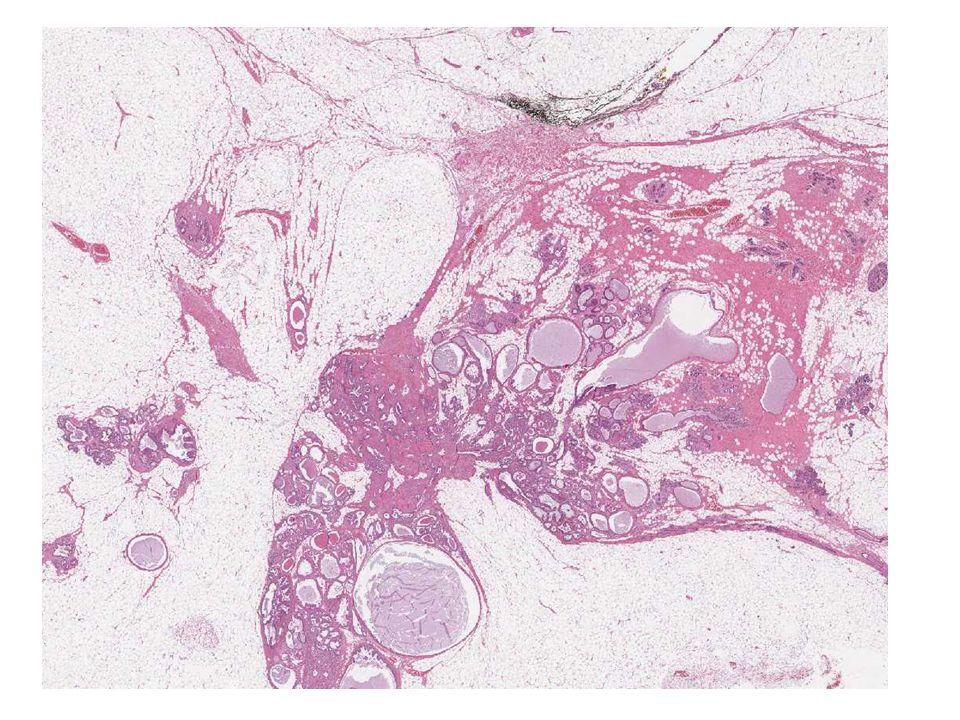 Vari tipi di adenosi: Adenosi florida, sclerosante, tubulare, adenomioepiteliomatosa, secretoria