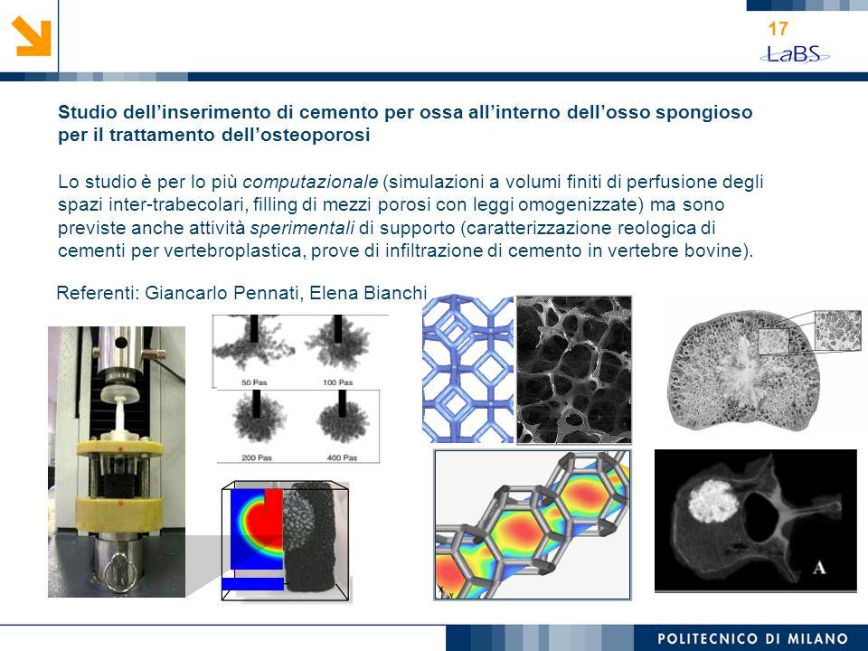 Studio dell'inserimento di cemento per ossa all'interno dell'osso spongioso per il trattamento dell'osteoporosi