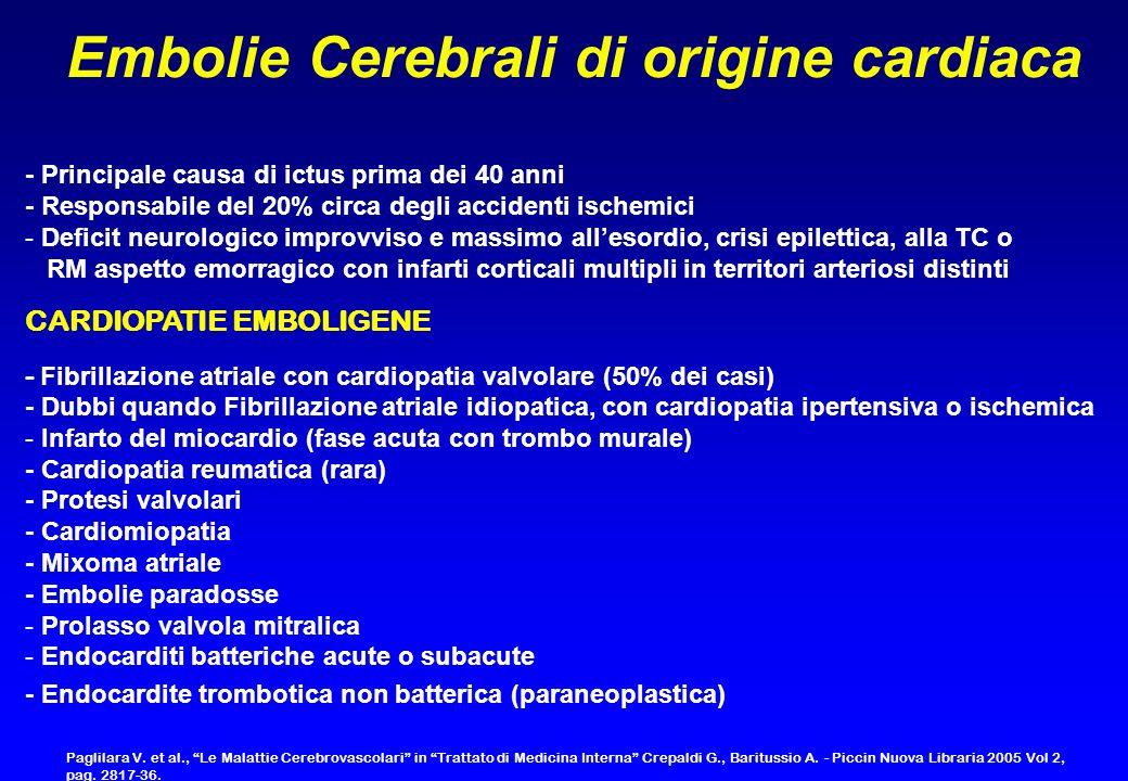 Embolie Cerebrali di origine cardiaca