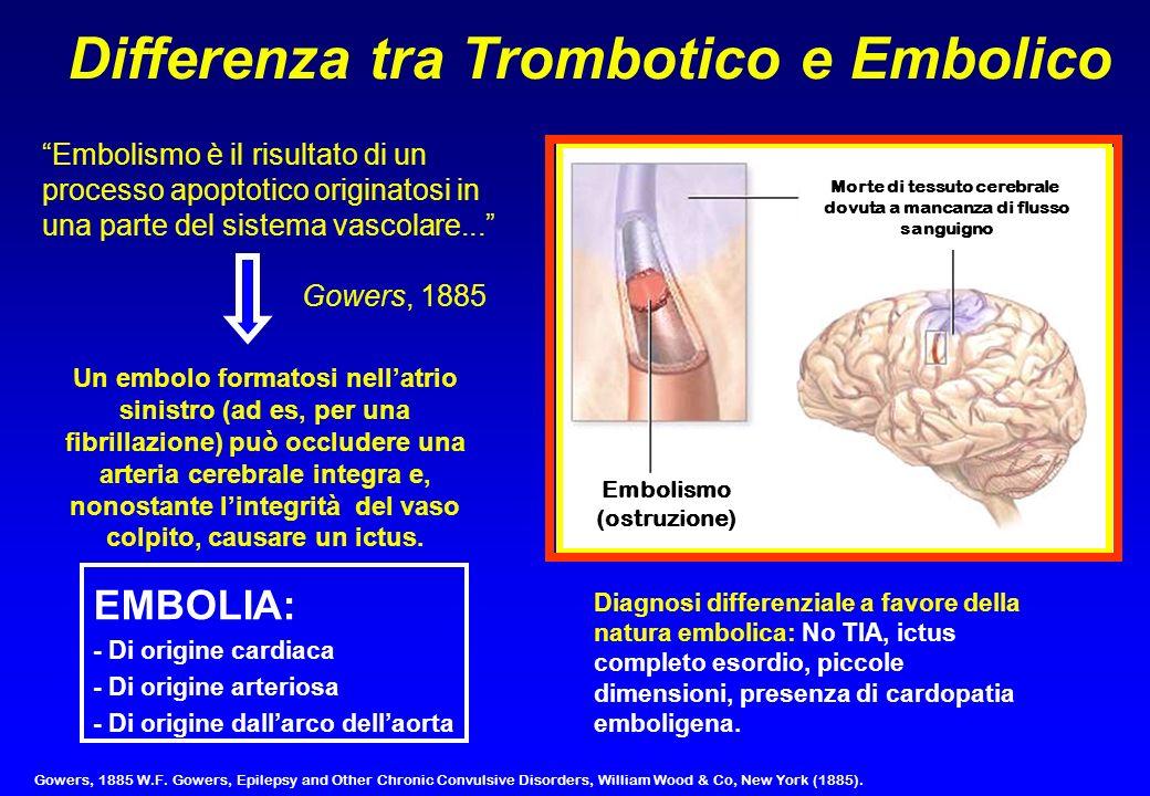 Morte di tessuto cerebrale dovuta a mancanza di flusso