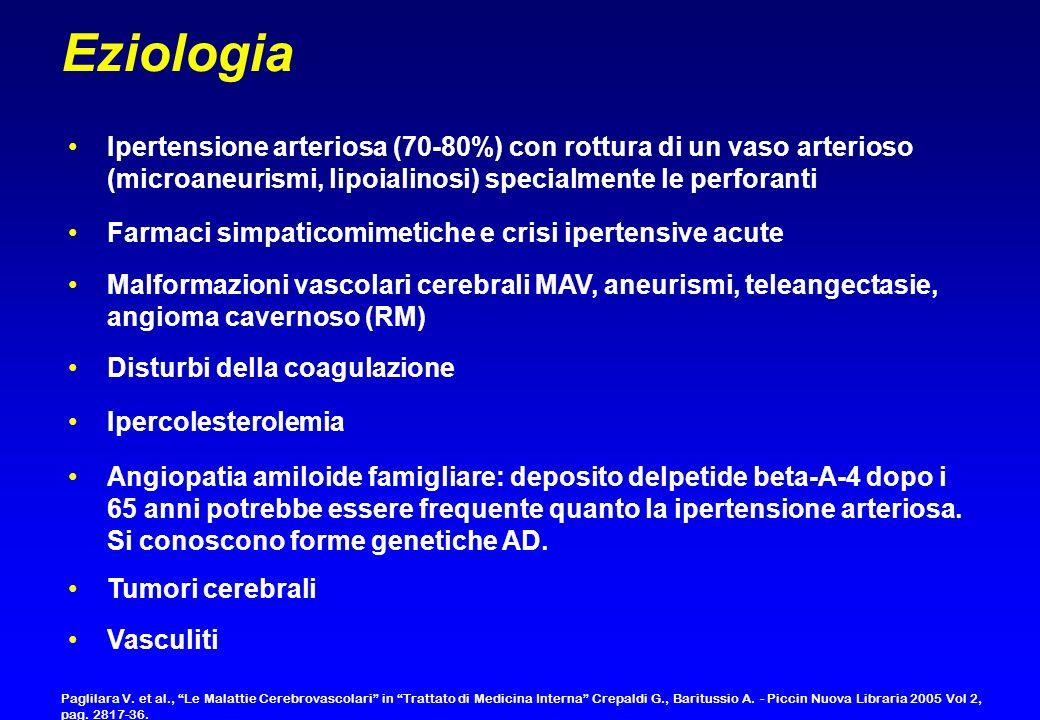 Eziologia Ipertensione arteriosa (70-80%) con rottura di un vaso arterioso (microaneurismi, lipoialinosi) specialmente le perforanti.