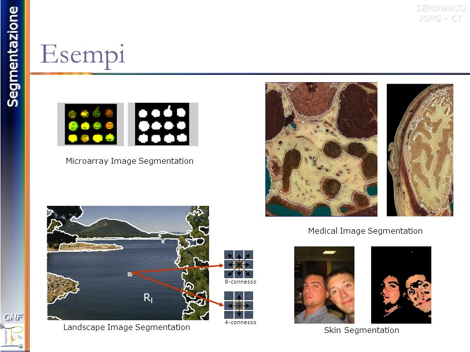 Microarray Image Segmentation