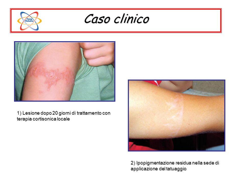 Caso clinico 1) Lesione dopo 20 giorni di trattamento con terapia cortisonica locale.