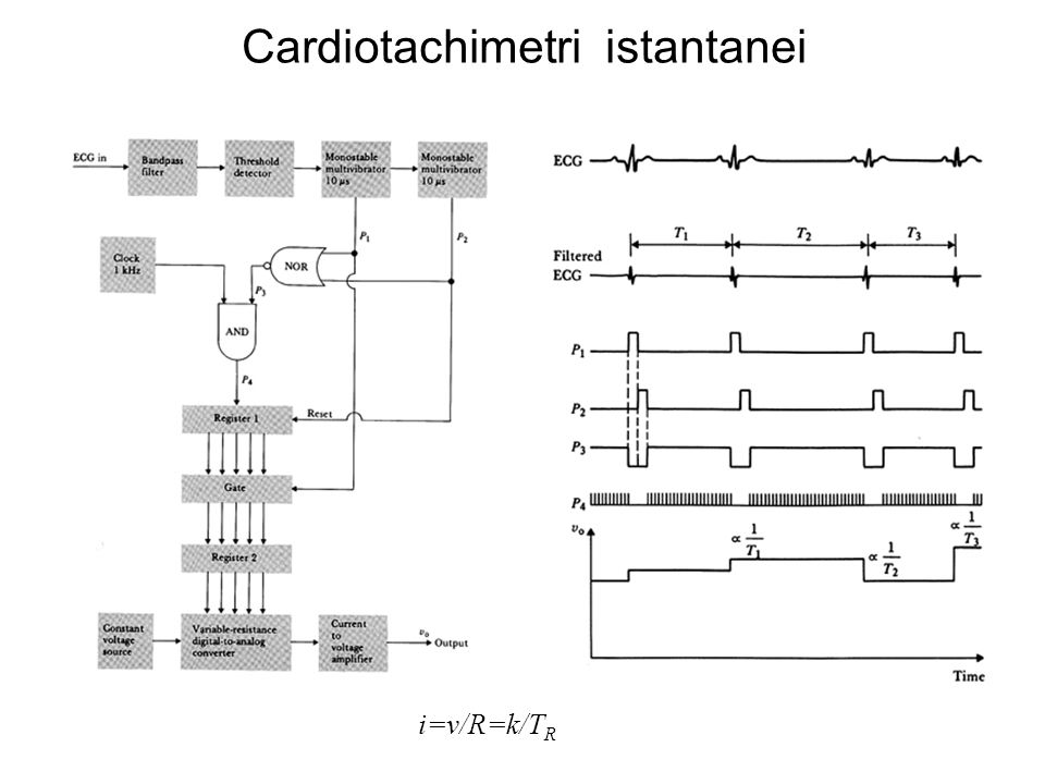 Cardiotachimetri istantanei