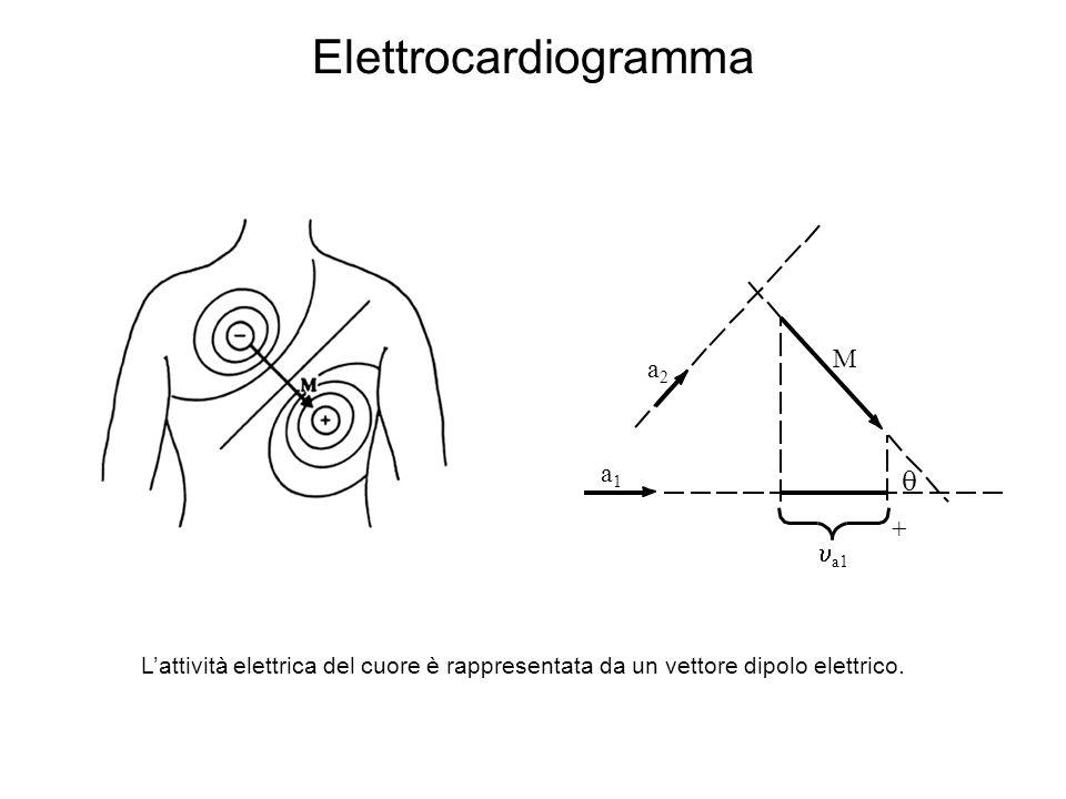 Elettrocardiogramma  M a2 a1 + ua1