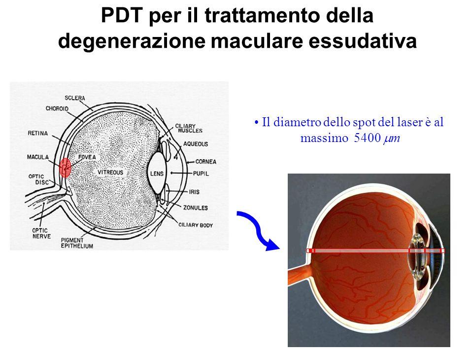 PDT per il trattamento della degenerazione maculare essudativa