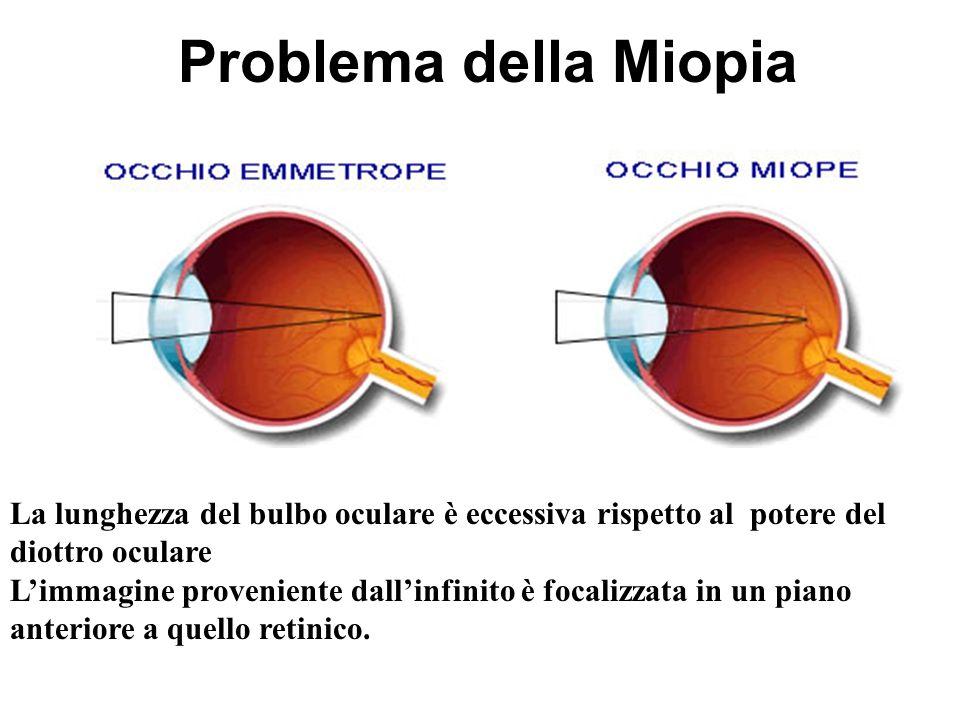Problema della Miopia La lunghezza del bulbo oculare è eccessiva rispetto al potere del diottro oculare.