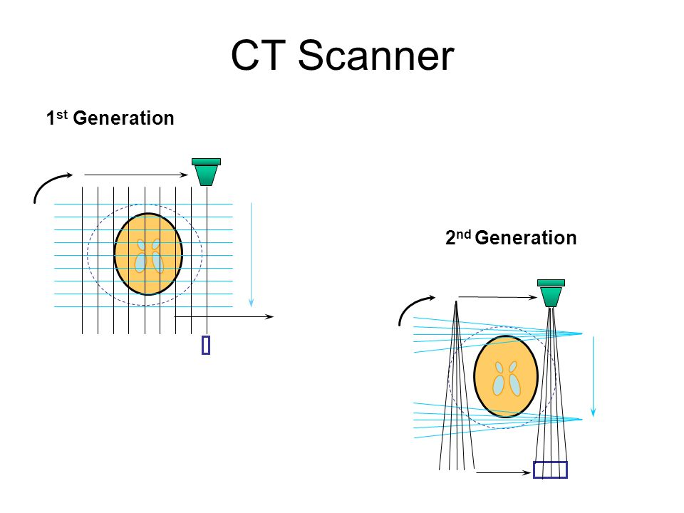 CT Scanner 1st Generation 2nd Generation