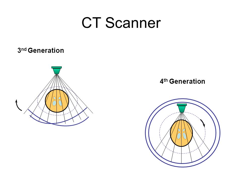CT Scanner 3nd Generation 4th Generation