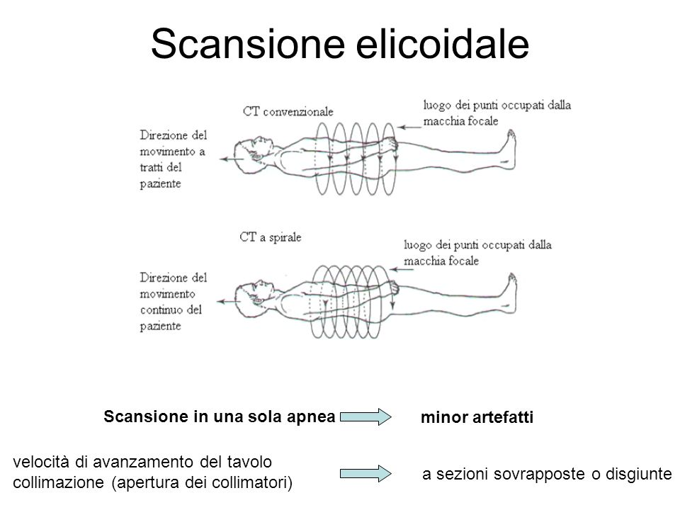 Scansione elicoidale Scansione in una sola apnea minor artefatti