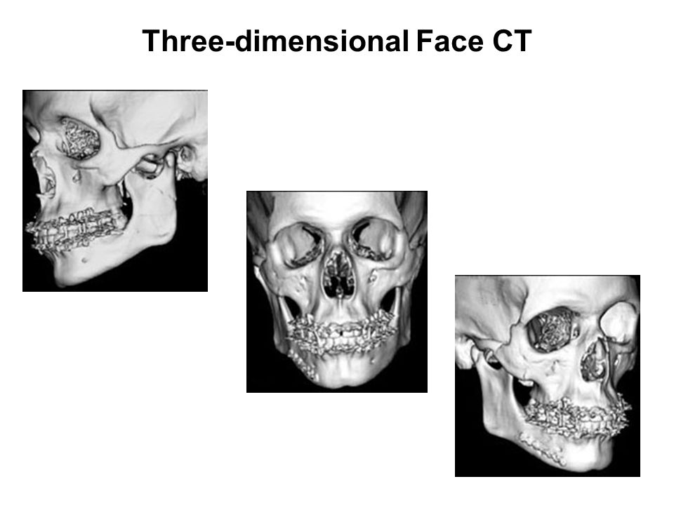 Three-dimensional Face CT